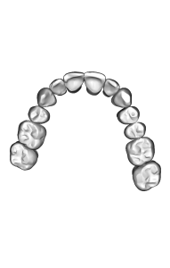 The digital setup model is then used to design and manufacture the actual custom braces that are place behind the teeth.