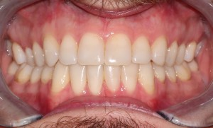 The actual finished treatment result using custom lingual braces