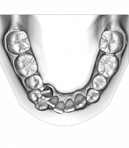 The digital model of the patients teeth before treatment.