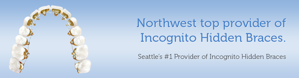 Orthodontist Seattle - Northwest top provider of Incognito Invisible Braces