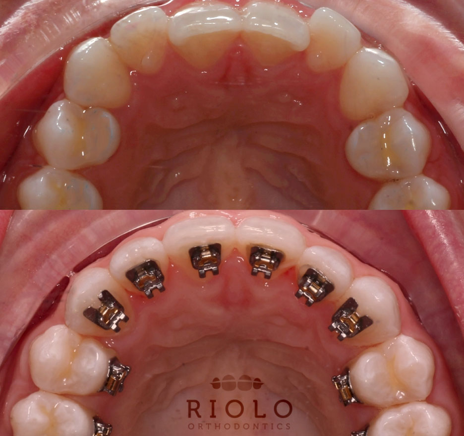 Incognito braces in seattle wa riolo orthodontics solutioingenieria Images