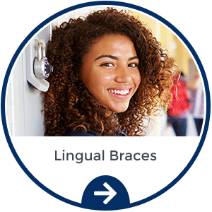 Lingual Braces Riolo Orthodontics Seattle WA