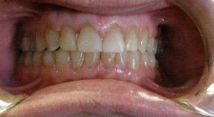 After Treatment to close space with Invisalign