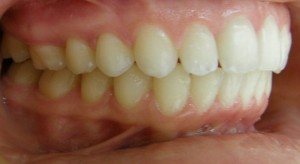 Severe Overjet, Post Treatment